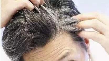 白头发长在哪里最危险?这个地方说明你的健康出了问题!
